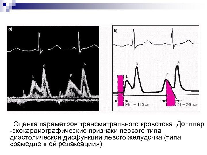 Оценка параметров трансмитрального кровотока. Допплер -эхокардиографические признаки первого типа диастолической дисфункции левого желудочка