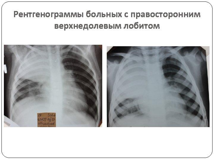 Рентгенограммы больных с правосторонним верхнедолевым лобитом