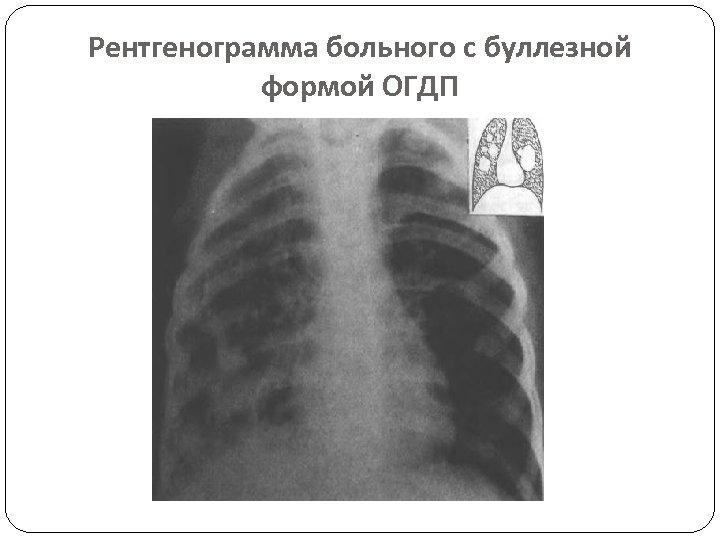 Рентгенограмма больного с буллезной формой ОГДП
