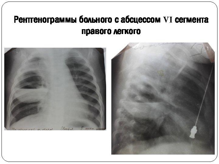 Рентгенограммы больного с абсцессом VI сегмента правого легкого