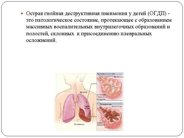 Острая гнойная деструктивная пневмония у детей (ОГДП) - это патологическое состояние, протекающее с