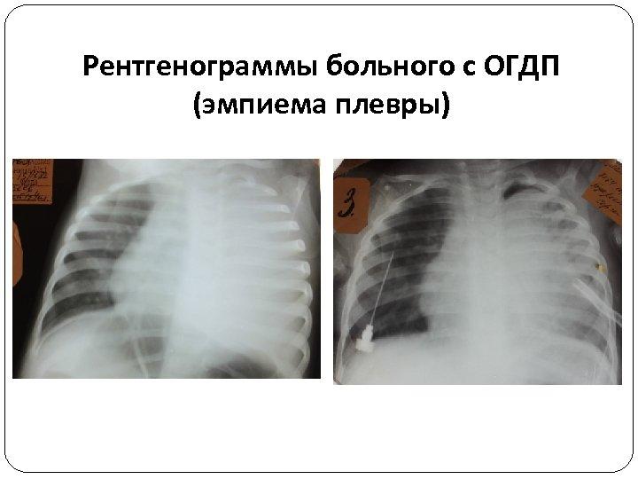 Рентгенограммы больного с ОГДП (эмпиема плевры)