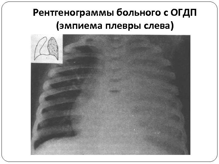 Рентгенограммы больного с ОГДП (эмпиема плевры слева)
