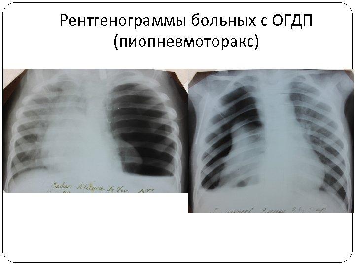 Рентгенограммы больных с ОГДП (пиопневмоторакс)