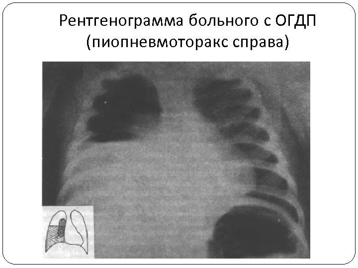 Рентгенограмма больного с ОГДП (пиопневмоторакс справа)