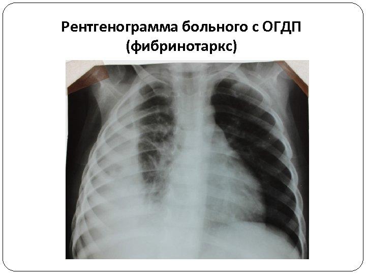 Рентгенограмма больного с ОГДП (фибринотаркс)