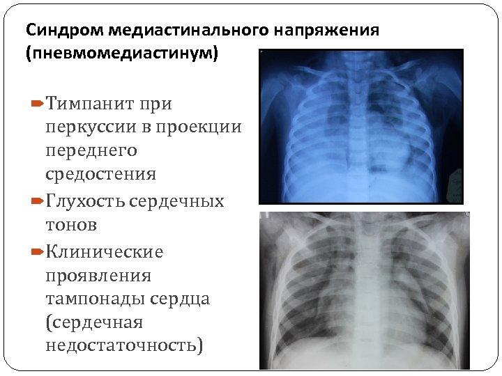 Синдром медиастинального напряжения (пневмомедиастинум) Тимпанит при перкуссии в проекции переднего средостения Глухость сердечных тонов