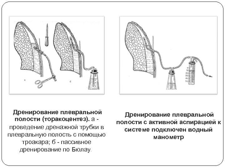 Дренирование плевральной полости (торакоцентез). а проведение дренажной трубки в плевральную полость с помощью троакара;