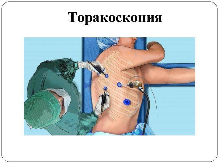 Торакоскопия