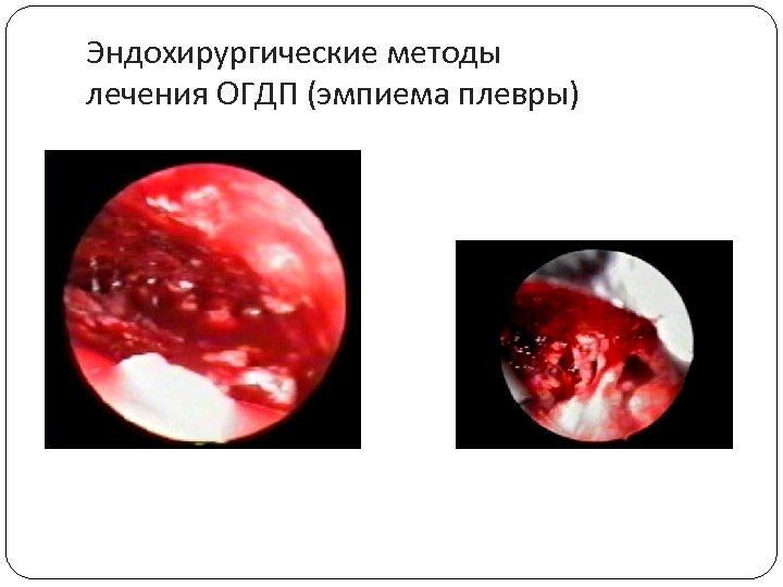 Эндохирургические методы лечения ОГДП (эмпиема плевры)