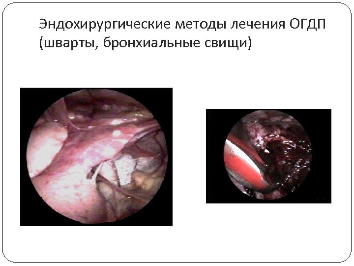 Эндохирургические методы лечения ОГДП (шварты, бронхиальные свищи)