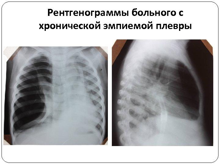 Рентгенограммы больного с хронической эмпиемой плевры