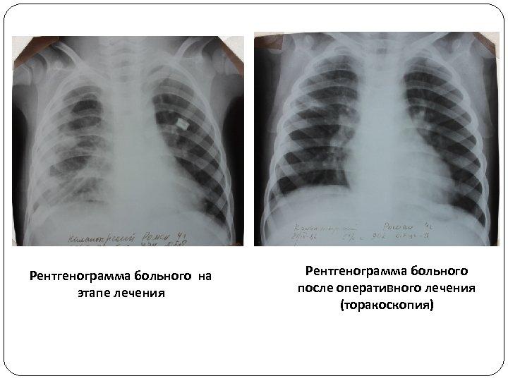 Рентгенограмма больного на этапе лечения Рентгенограмма больного после оперативного лечения (торакоскопия)