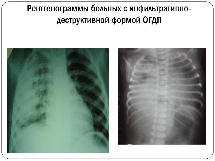 Рентгенограммы больных с инфильтративнодеструктивной формой ОГДП