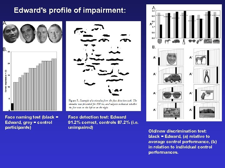 Edward's profile of impairment: Face naming test (black = Edward, grey = control participants)