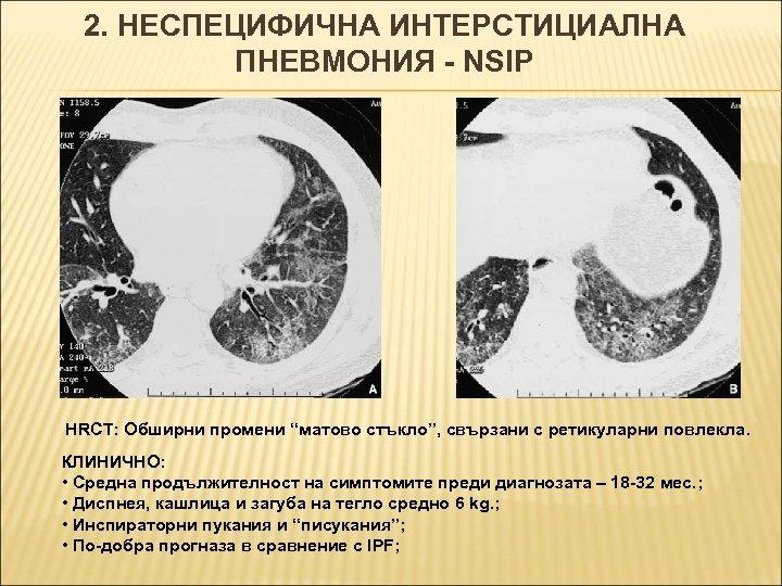 """2. НЕСПЕЦИФИЧНА ИНТЕРСТИЦИАЛНА ПНЕВМОНИЯ - NSIP HRCT: Обширни промени """"матово стъкло"""", свързани с ретикуларни"""