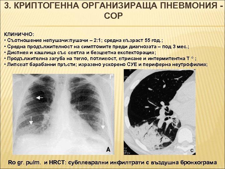 3. КРИПТОГЕННА ОРГАНИЗИРАЩА ПНЕВМОНИЯ COP КЛИНИЧНО: • Съотношение непушачи: пушачи – 2: 1; средна