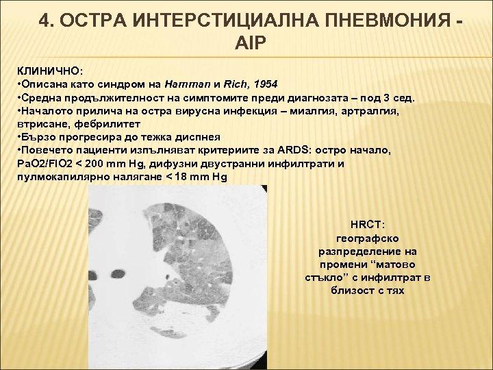 4. ОСТРА ИНТЕРСТИЦИАЛНА ПНЕВМОНИЯ AIP КЛИНИЧНО: • Описана като синдром на Hamman и Rich,