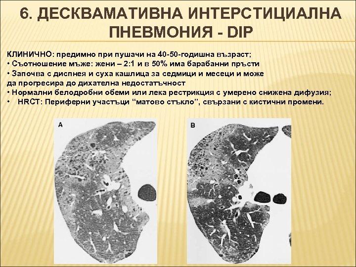 6. ДЕСКВАМАТИВНА ИНТЕРСТИЦИАЛНА ПНЕВМОНИЯ - DIP КЛИНИЧНО: предимно при пушачи на 40 -50 -годишна