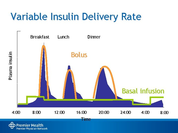 Variable Insulin Delivery Rate Breakfast Lunch Dinner Plasma insulin Bolus Basal infusion 4: 00
