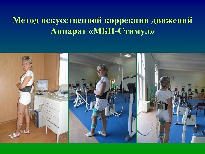Метод искусственной коррекции движений Аппарат «МБН-Стимул»