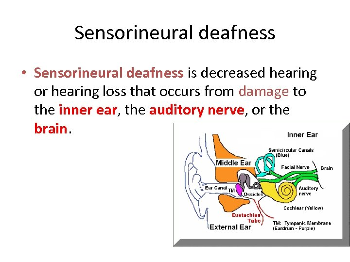 Sensorineural deafness • Sensorineural deafness is decreased hearing or hearing loss that occurs from