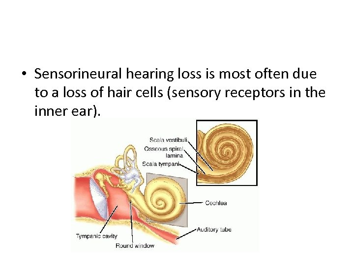• Sensorineural hearing loss is most often due to a loss of hair
