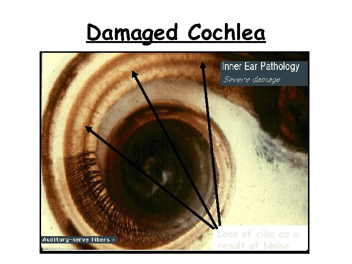 Damaged Cochlea Loss of cilia as a result of Noise