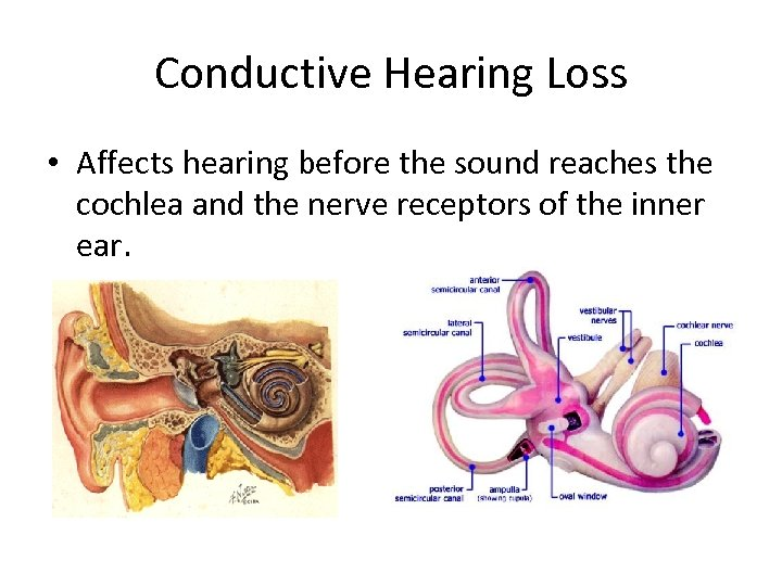 Conductive Hearing Loss • Affects hearing before the sound reaches the cochlea and the