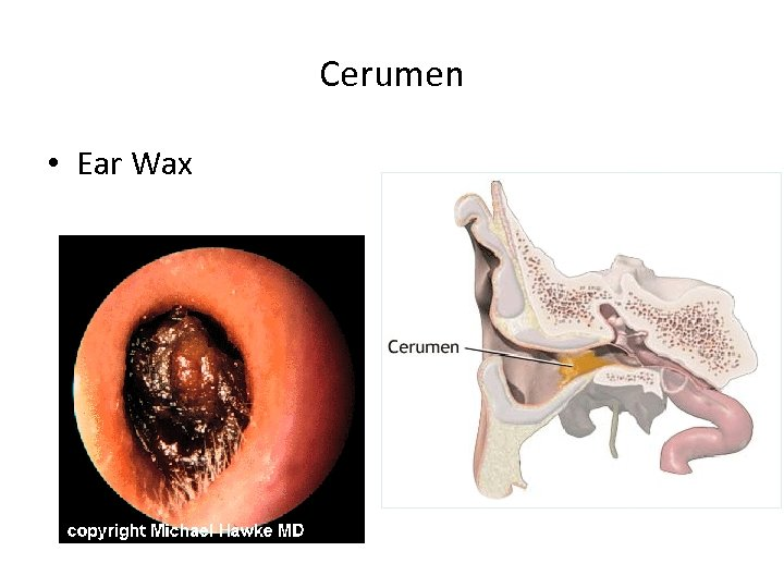 Cerumen • Ear Wax