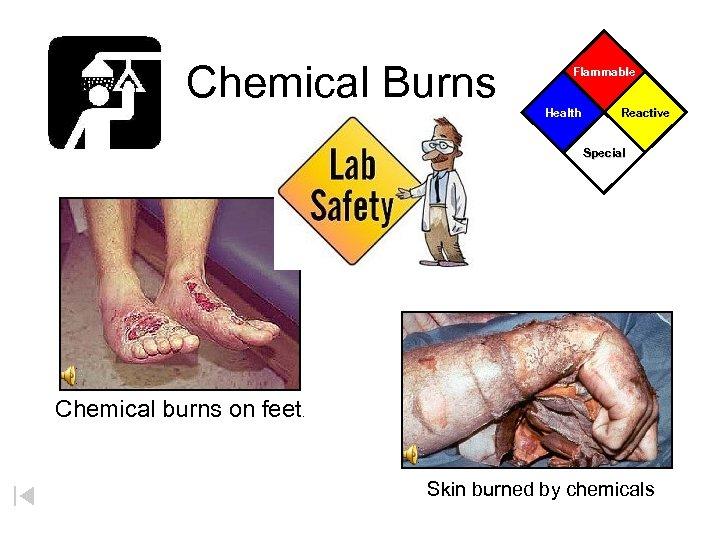 Chemical Burns Flammable Health Reactive Special Chemical burns on feet. Skin burned by chemicals