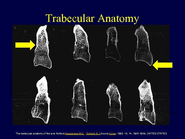 Trabecular Anatomy The trabecular anatomy of the axis Authors: Heggeness, M. H. ; Doherty,