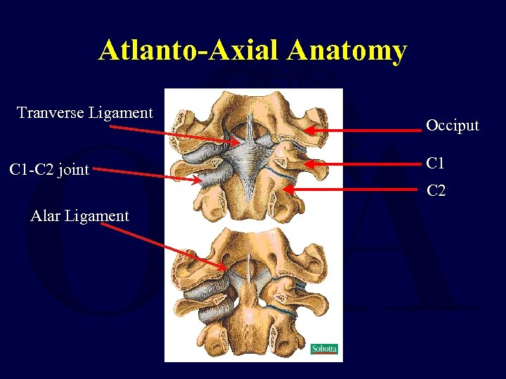 Atlanto-Axial Anatomy Tranverse Ligament C 1 -C 2 joint Occiput C 1 C 2
