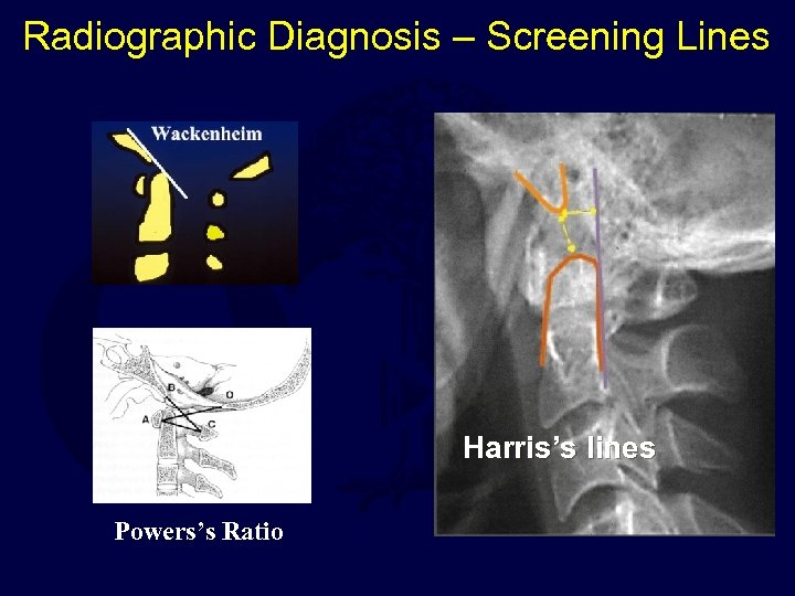 Radiographic Diagnosis – Screening Lines Harris's lines Powers's Ratio