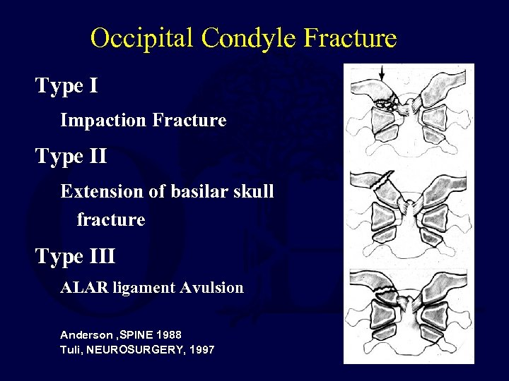 Occipital Condyle Fracture Type I Impaction Fracture Type II Extension of basilar skull fracture