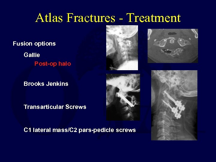 Atlas Fractures - Treatment Fusion options Gallie Post-op halo Brooks Jenkins Transarticular Screws C