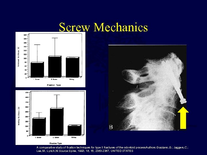 Screw Mechanics A comparative study of fixation techniques for type II fractures of the