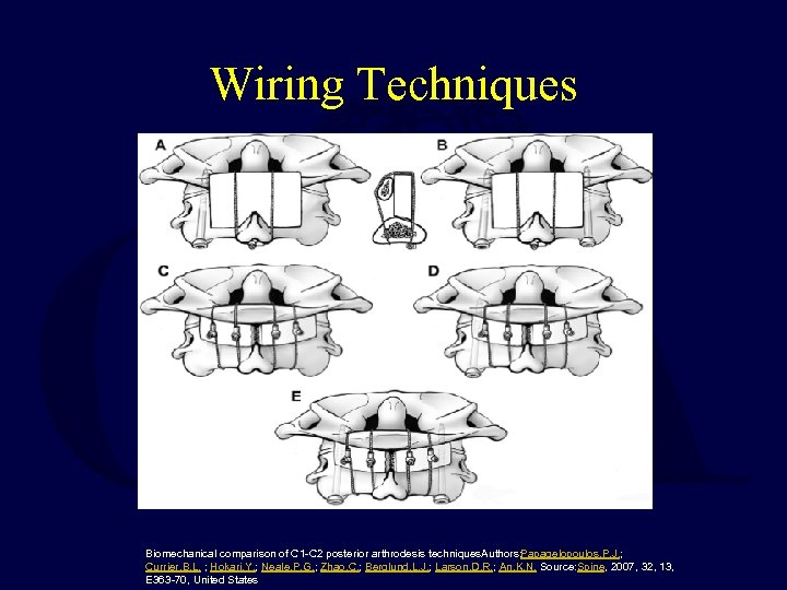 Wiring Techniques Biomechanical comparison of C 1 -C 2 posterior arthrodesis techniques. Authors: Papagelopoulos,