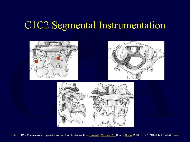 C 1 C 2 Segmental Instrumentation Posterior C 1 -C 2 fusion with polyaxial