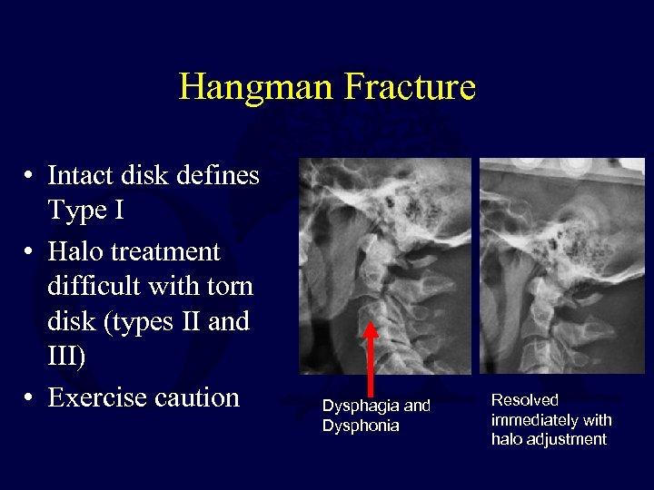 Hangman Fracture • Intact disk defines Type I • Halo treatment difficult with torn