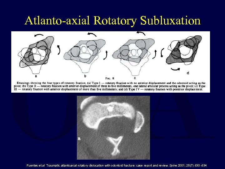 Atlanto-axial Rotatory Subluxation Fuentes et al Traumatic atlantoaxial rotatory dislocation with odontoid fracture: case