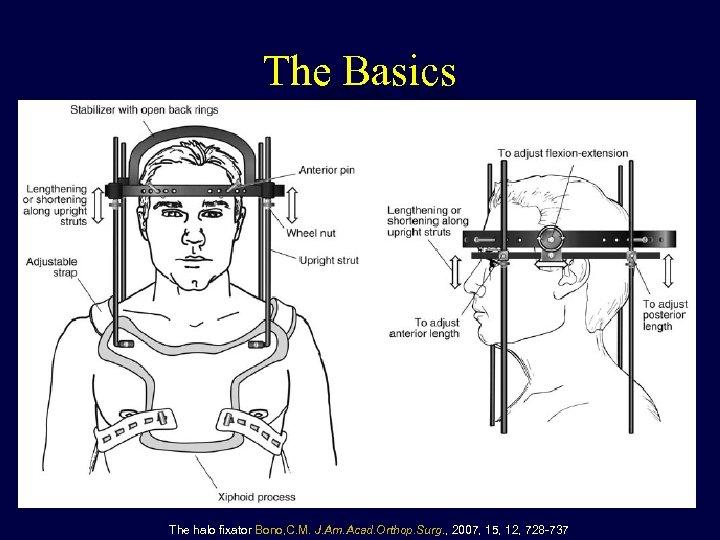 The Basics The halo fixator Bono, C. M. J. Am. Acad. Orthop. Surg. ,