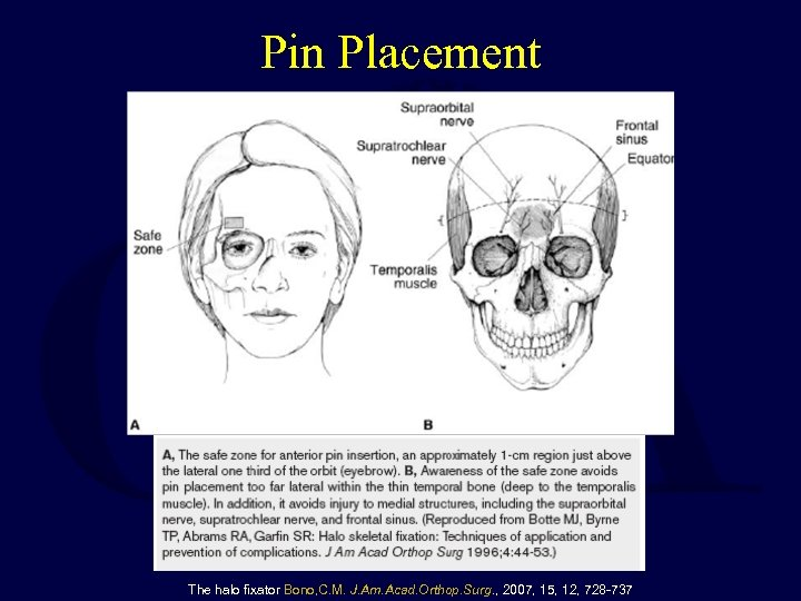 Pin Placement The halo fixator Bono, C. M. J. Am. Acad. Orthop. Surg. ,