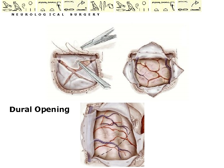 N E U R O L O G I C A L Dural Opening