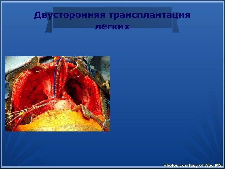 Двусторонняя трансплантация легких Photos courtesy of Woo MS.