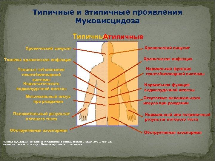 Типичные и атипичные проявления Муковисцидоза Типичные Атипичные Хронический синусит Тяжелая хроническая инфекция Тяжелые заболевания