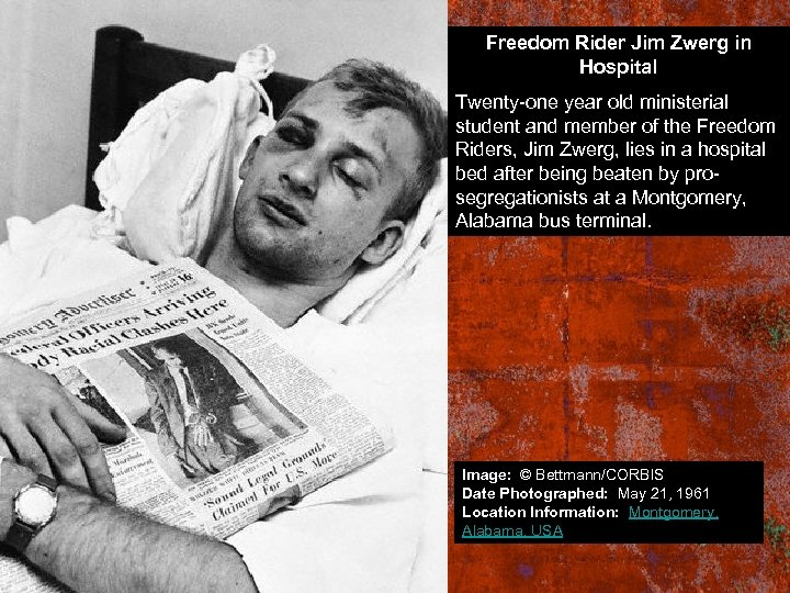 Freedom Rider Jim Zwerg in Hospital Twenty-one year old ministerial student and member of