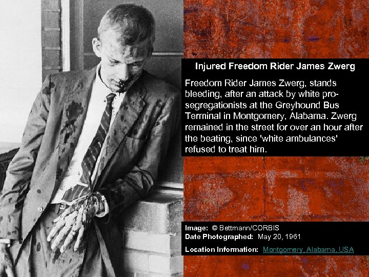 Injured Freedom Rider James Zwerg, stands bleeding, after an attack by white prosegregationists at