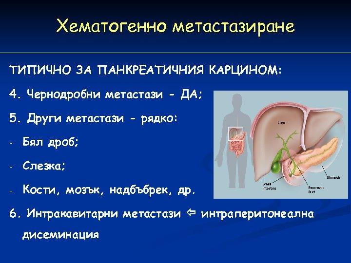 Хематогенно метастазиране ТИПИЧНО ЗА ПАНКРЕАТИЧНИЯ КАРЦИНОМ: 4. Чернодробни метастази - ДА; 5. Други метастази