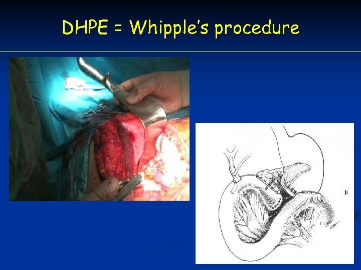 DHPE = Whipple's procedure